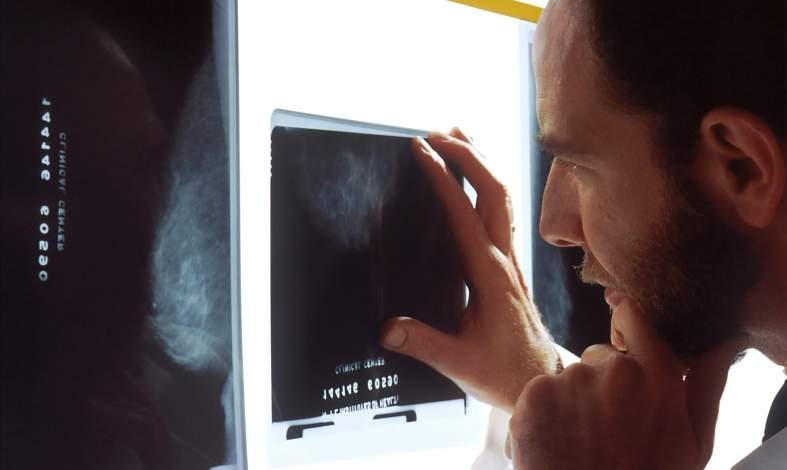 rak diagnoza